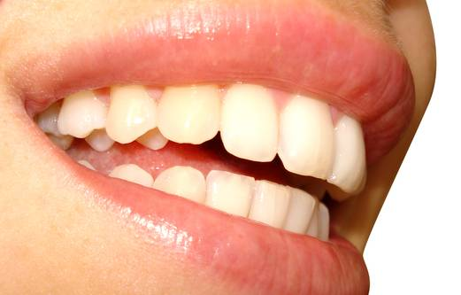Licówki dla zębów