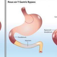 Operacyjne metody leczenia otyłości – charakterystyka bariatrii