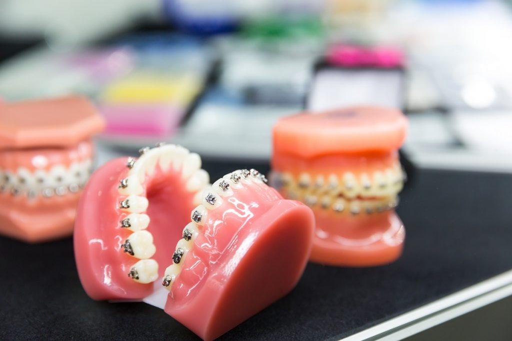 aparat zębowy